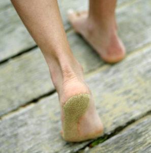 Die Schweißdrüßen an den Füßen sollen uns eigentlich ermöglich besser barfuß zu laufen.