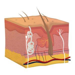 Anders als der hier abgebildete Querschnitt der Haut ist die oberste Schicht der Haut an der Fußsohle deutlich dicker und neigt daher eher zum aufweichen durch Schweiß und Flüssigkeit.